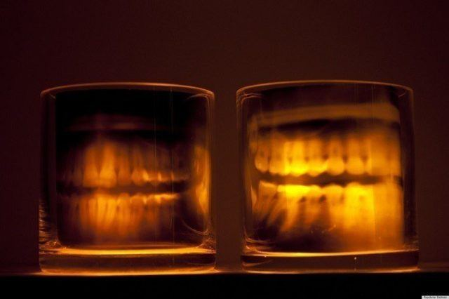 Decoration-halloween-lamps-candle-dental-x-rays